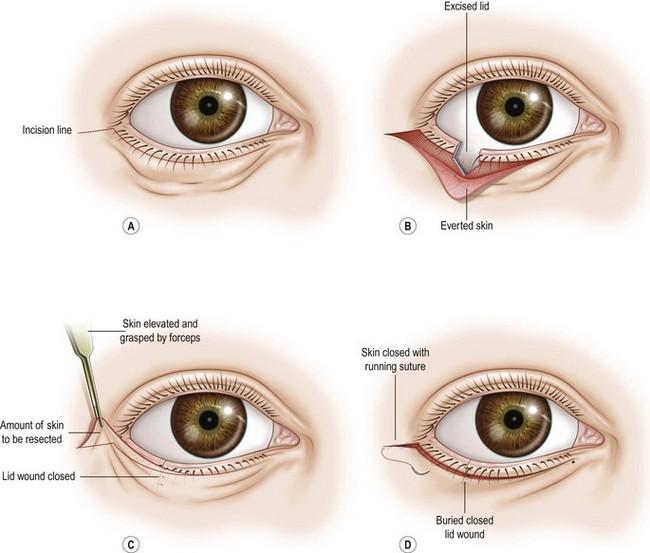 Entropion/Ectropion correction-Lateral Tarsal Sling Procedure