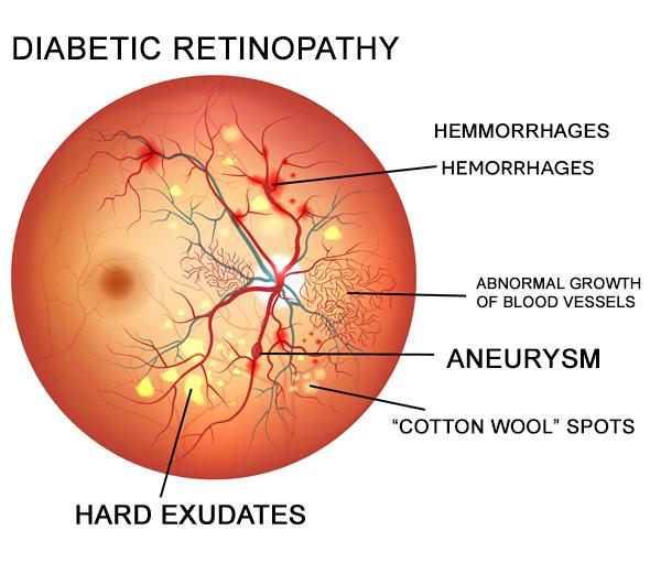 Diabetic-Retinopathy-Eye-Disease
