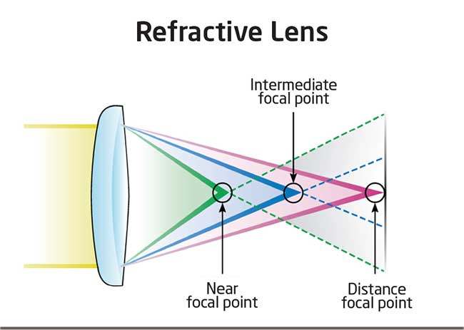 refractive lens
