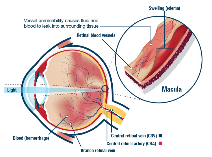 Branch Retinal Vein
